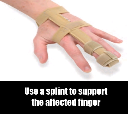 Support With A Splint