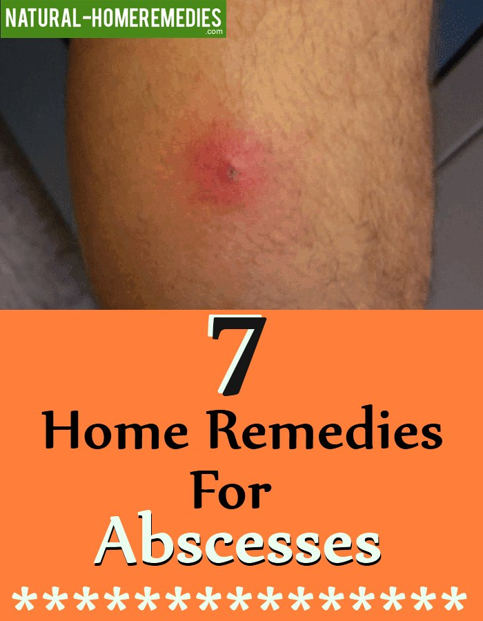 Remedies For Abscesses