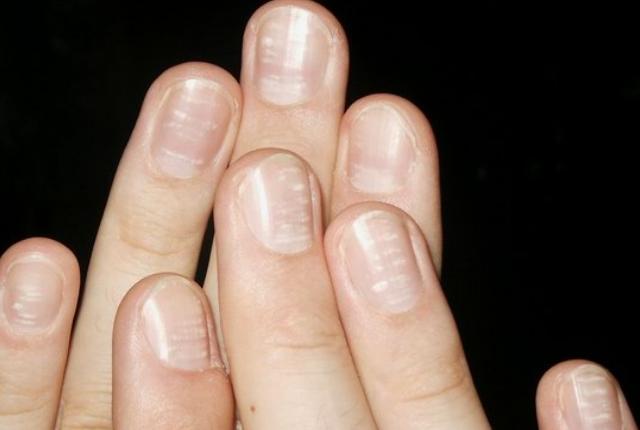 white strips on nails