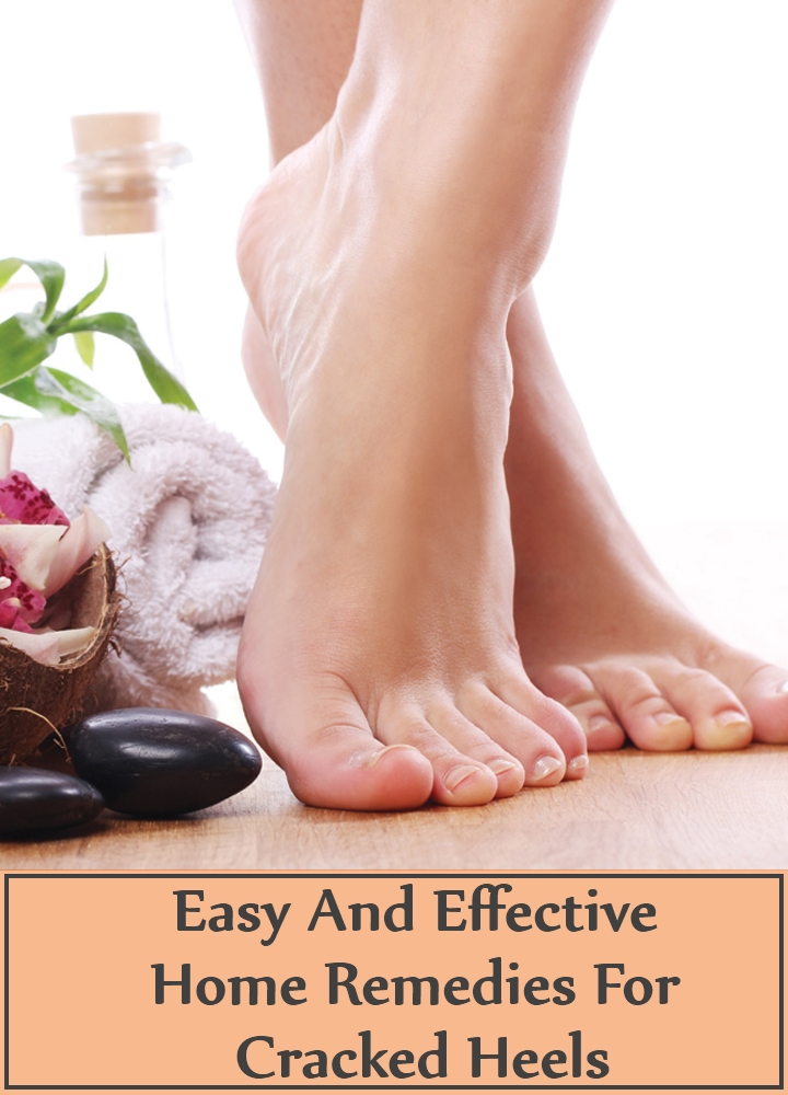Easy And Effective Home Remedies For Cracked Heels