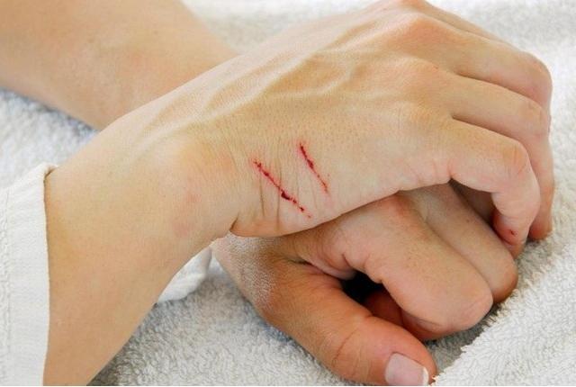Skin Abrasion