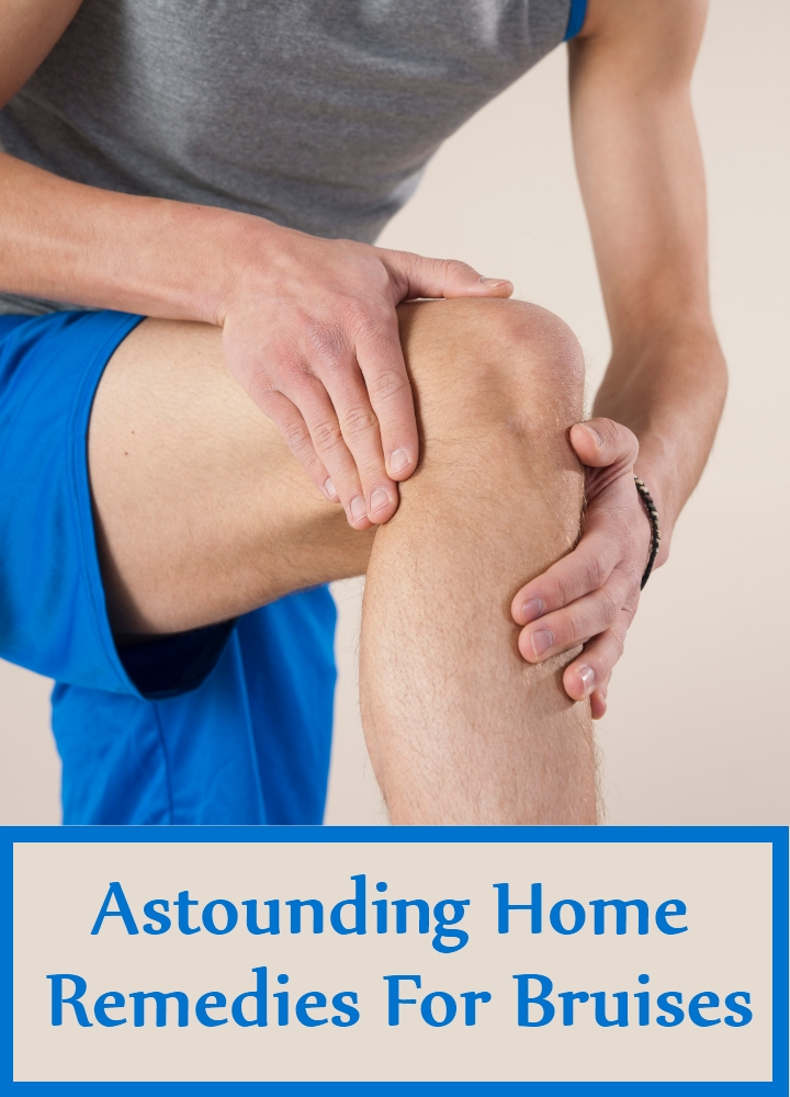 Astounding Home Remedies For Bruises