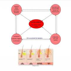What Causes Acne Diagram Klaxon Sonos Wiring Is Symptoms Treatments Natural Clinic