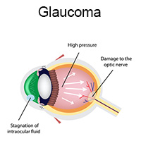 glaucoma explanation