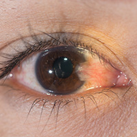 Pterygium surfer's eye injury