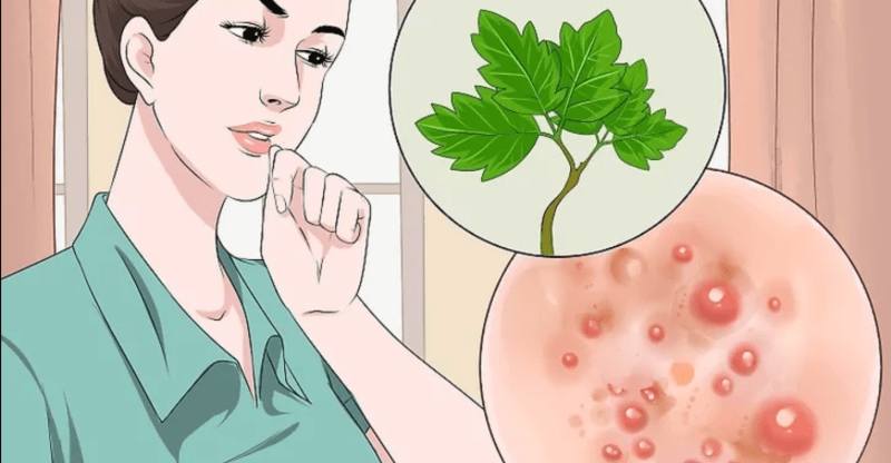 How To Get Rid Of Armpit Rash Naturally