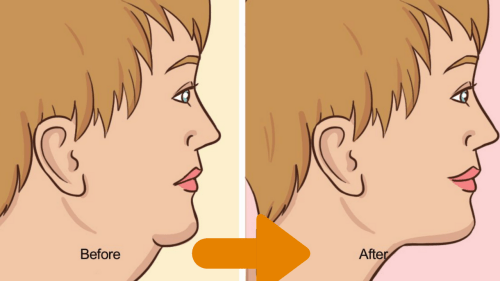 How To Get Rid Of Double Chin FAST
