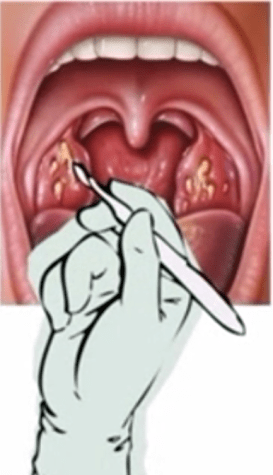 How to get rid of tonsils stones with surgery