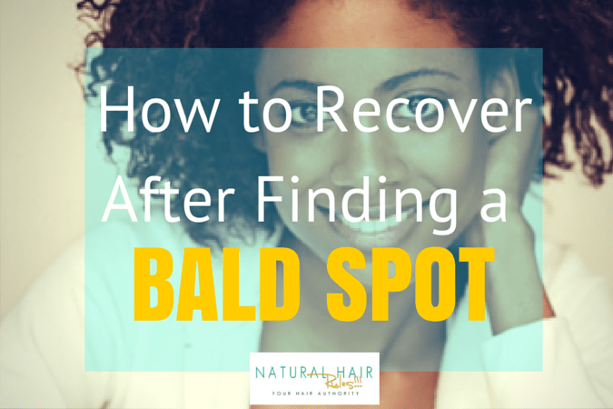 How to Recover After Finding a Bald Spot in Your Hair