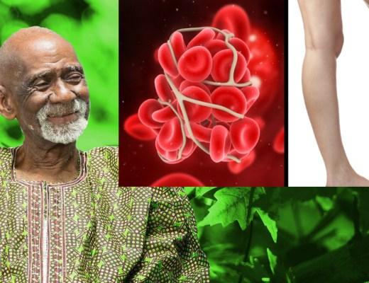 Blood Clots Dr Sebi
