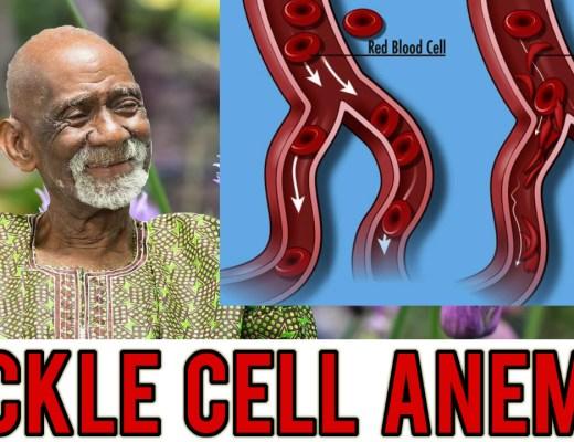 Sickle Cell Anemia Dr Sebi