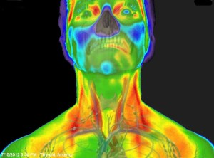 Medical Thermography Research Thyroid Holistic Healtcare Natural Medicine Center Lakeland Central Florida