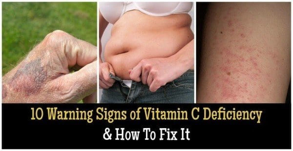 10 Warning Signs of Vitamin C Deficiency & How To Fix It