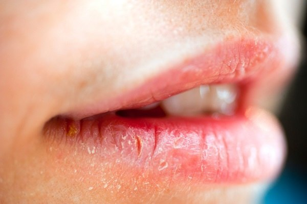 8 Warning Signs Your Lips Are Sending You