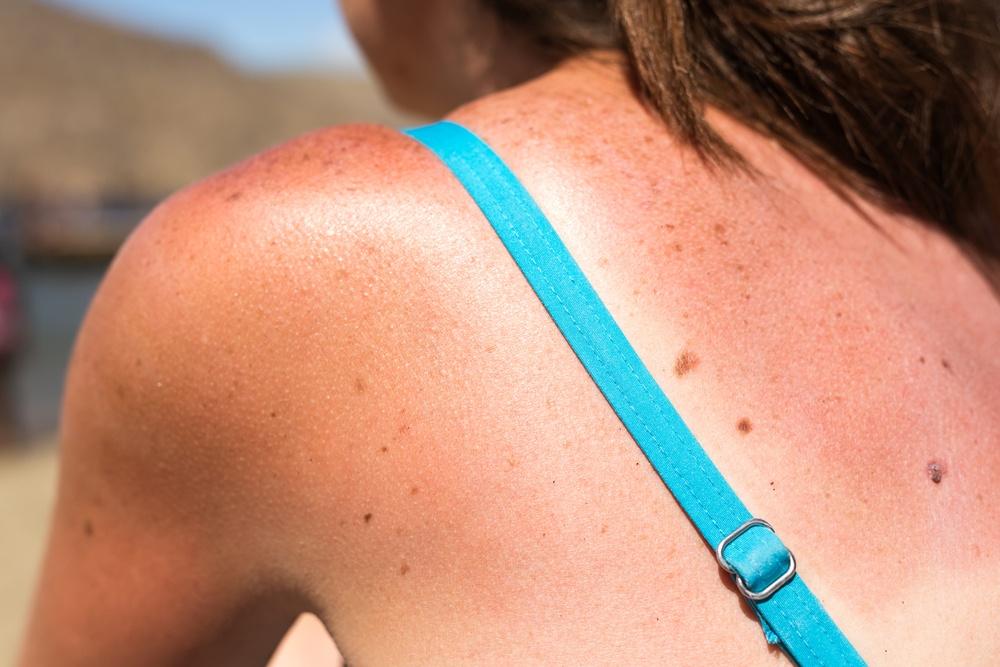 4 Essential Oils That Quickly Relieve Sunburn