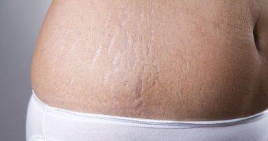 Pelle in gravidanza: come prevenire le smagliature | Naturalmente