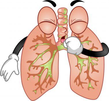 ¿Cómo tratar la bronquitis en niños naturalmente?