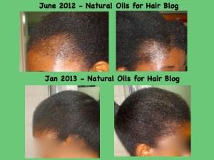 regrow bald spots