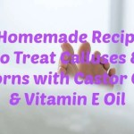 2 Homemade Recipes to Treat Calluses & Corns with Castor Oil & Vitamin E Oil