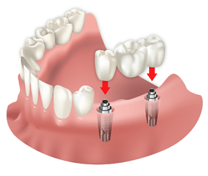 implantes-dentales-natural-smile-