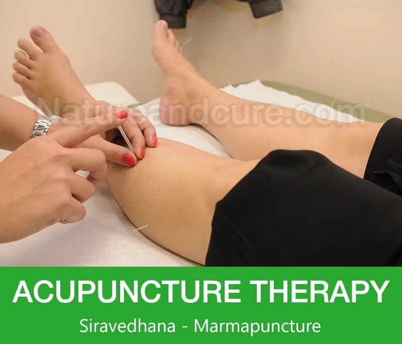 Acupuncture Therapy - Siravedhana - Marmapuncture