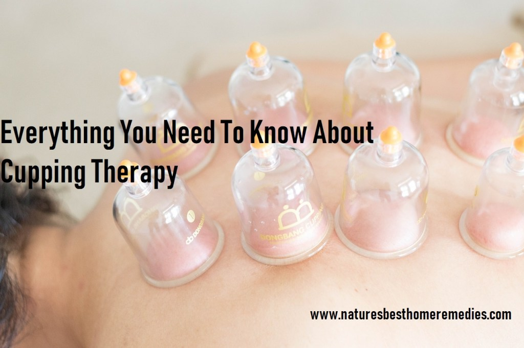 cupping therapy what to expect