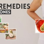 9 best home remedies for gallstones to improve gallbladder healthhome remedies for gallstones