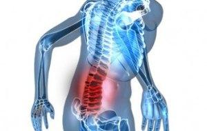 Remedios naturales para la Fibromialgia