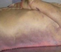 A photograph showing the mid-part of a deceased person's body, illustrating the phenomenon of hypostasis or livor mortis.