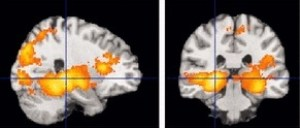 A set of two digital imaging brain scans showing increased bilateral hippocampal activity in patients with clinical depression compared to controls. Source: Johnston et al 2015