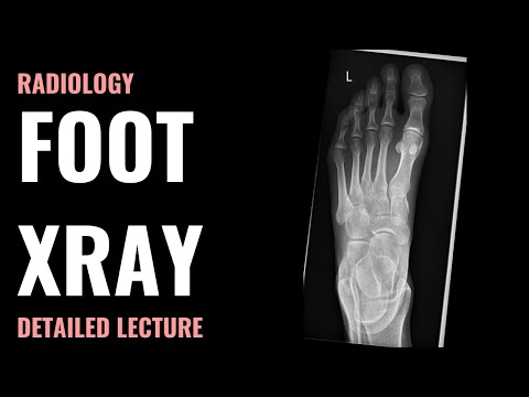 Foot Xray – Radiology – Detailed Lecture