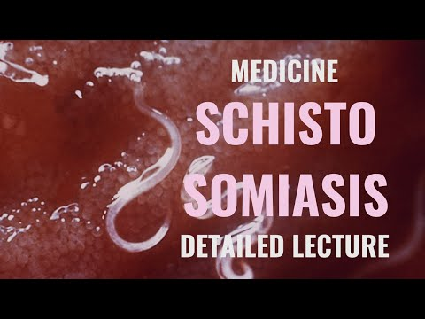PARASITIC INFECTIONS Schistosomiasis