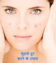 Remove Pimples and Acne कील - मुंहासे
