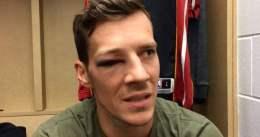 Dragic, fuera de combate por un ojo dantesco