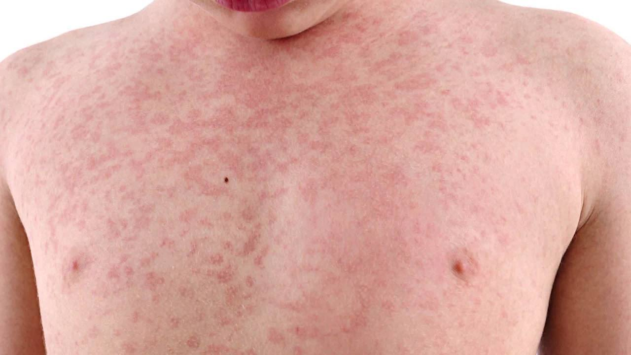 Toledo-Lucas County Health Department investigating suspected case of measles