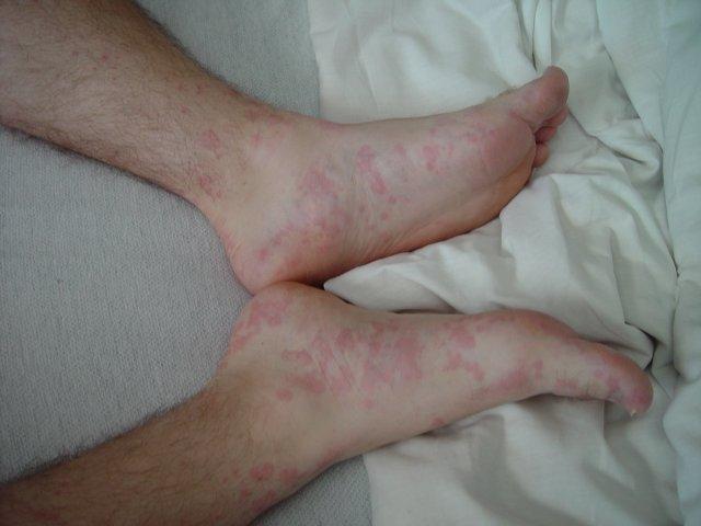 Image Result For Advil Allergic Reaction