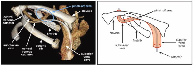 Complications des chambres implantables port cath - Rincage pulse chambre implantable ...