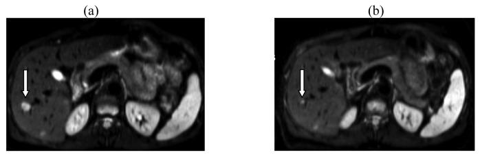 Un fichier externe contenant une image, une illustration, etc. Le nom de l'objet est cancers-03-01454f1.jpg