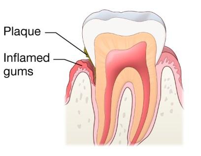 Gusi Bisa Terasa Gatal- Global Estetik Dental Care