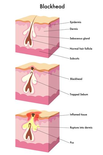 hormonal acne diagram skin system vulgaris - health facts