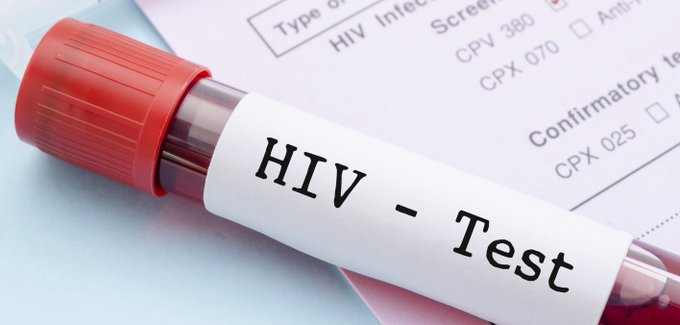 HIV self testing will bridge transmission control gaps – CiSHAN