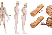 Kemik erimesi Osteoporoz