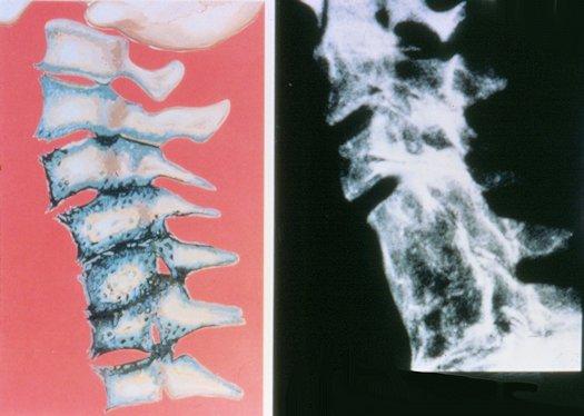 Neck Arthritis  Arthritis Neck Pain