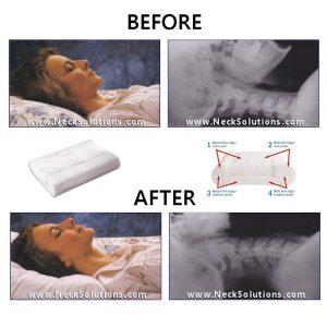 neck pillows neck solutions