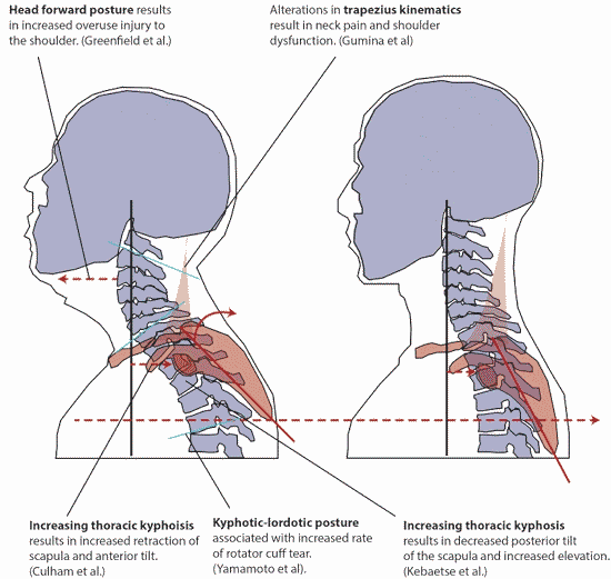 pillow to correct forward head posture