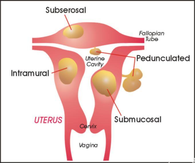 types of fibroid tumors
