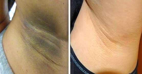 dark armpit