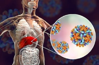 Hepatitis B Virus: 5 Proven Ways To Reduce The Risk Of Infection 2