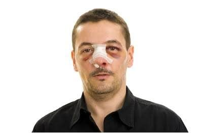 first aid for broken nose