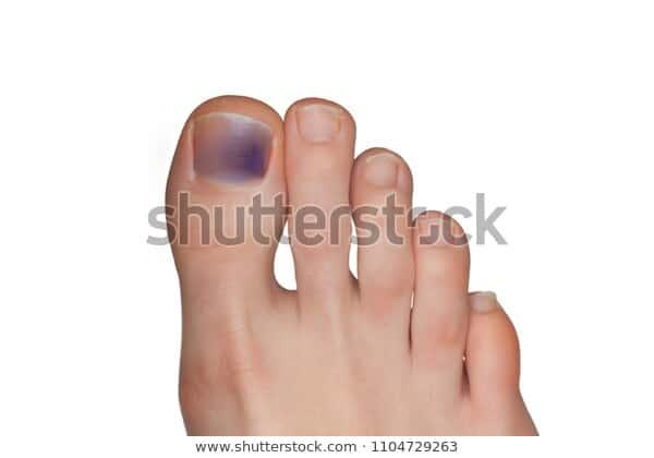 blue toenail fungus